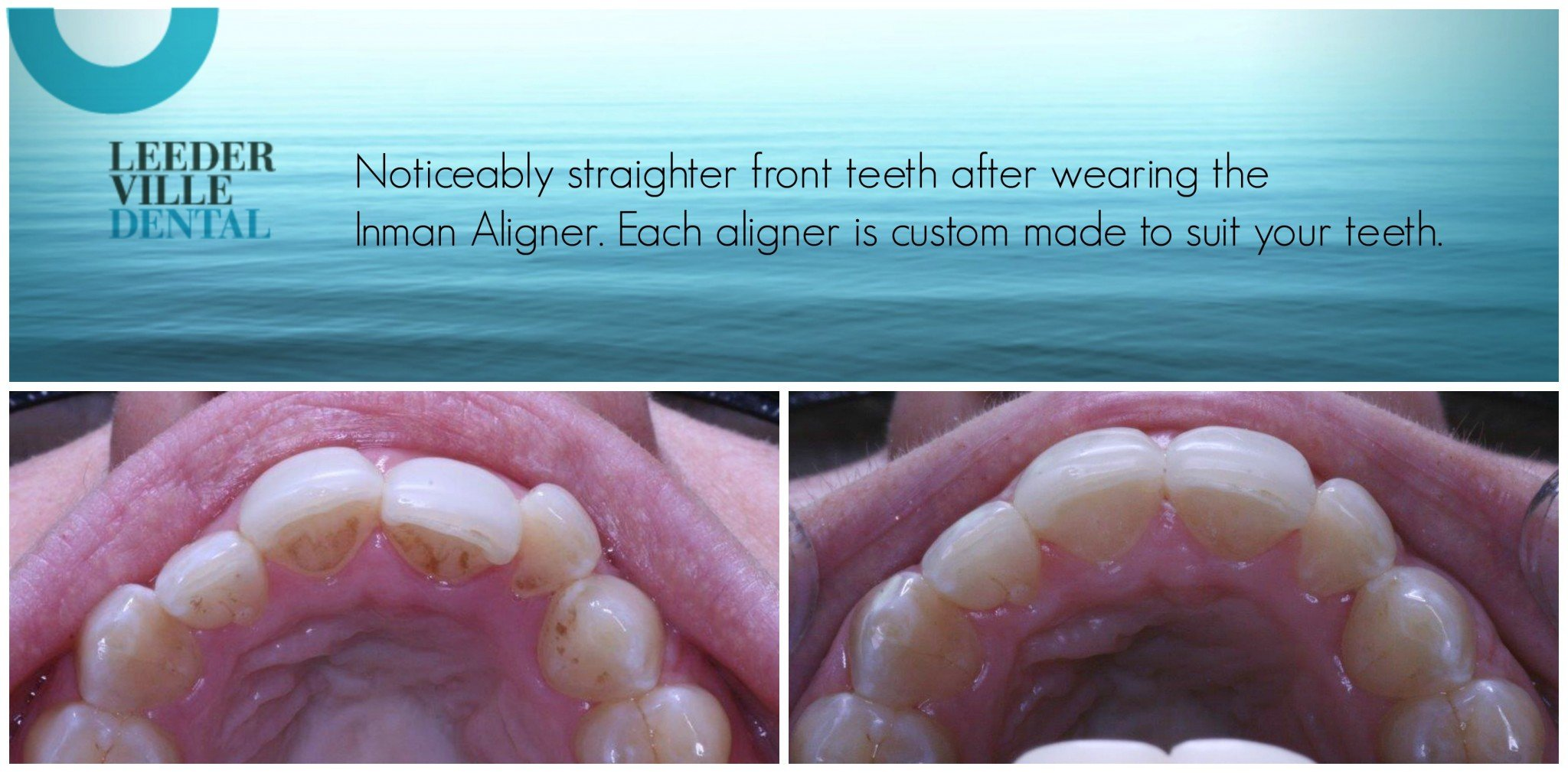 result after wearing an Inman Aligner