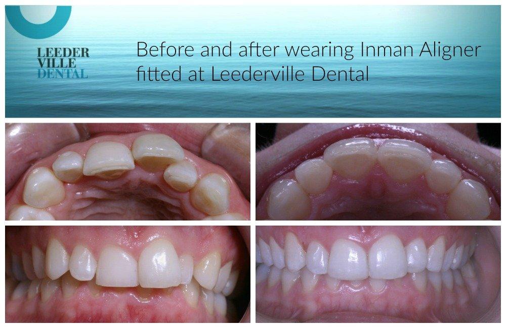 teeth straightened by Inman Aligner