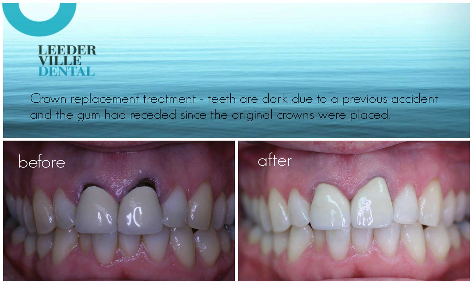 Before And After Photos From Leederville Dental