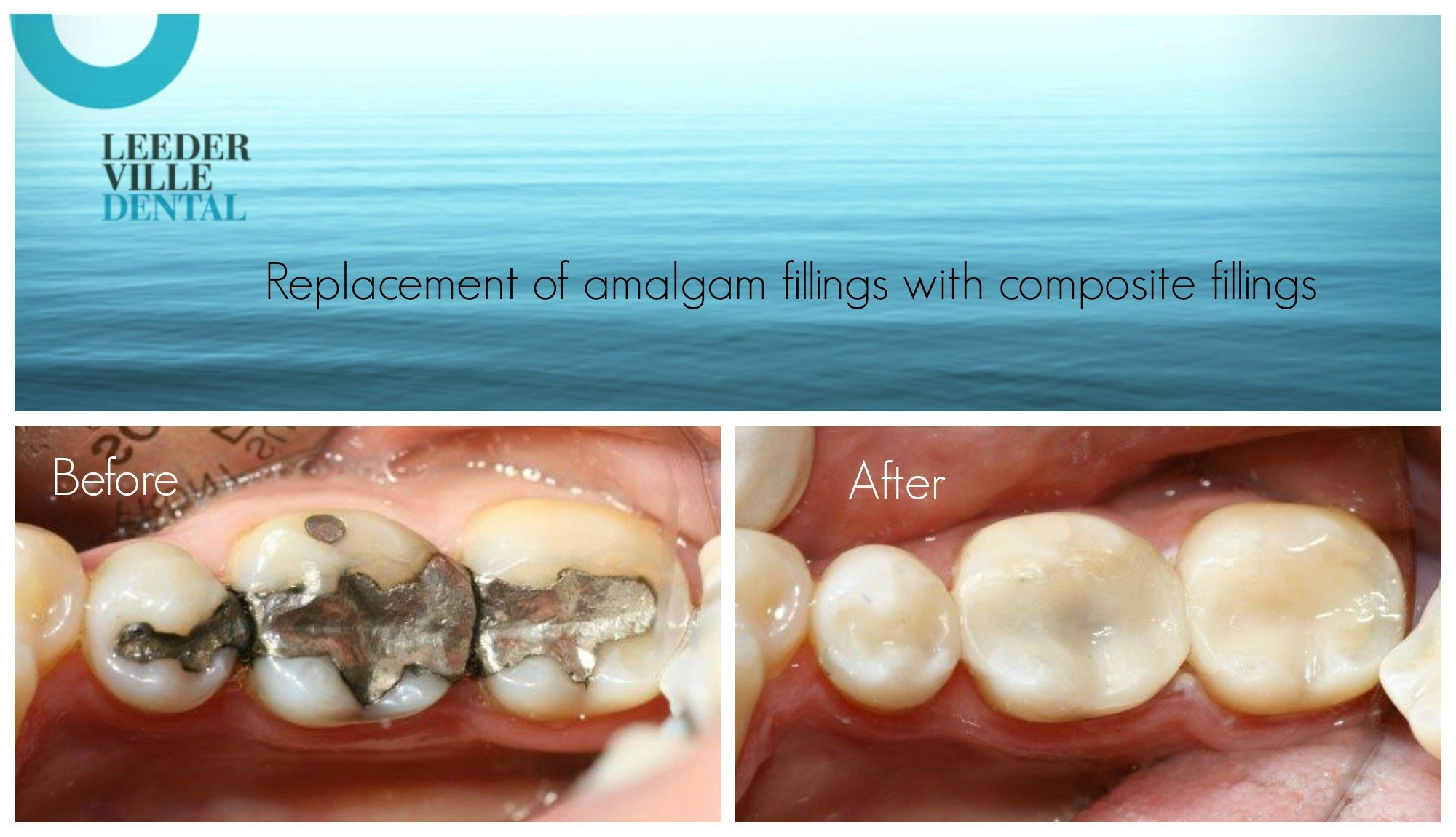 replace silver fillings