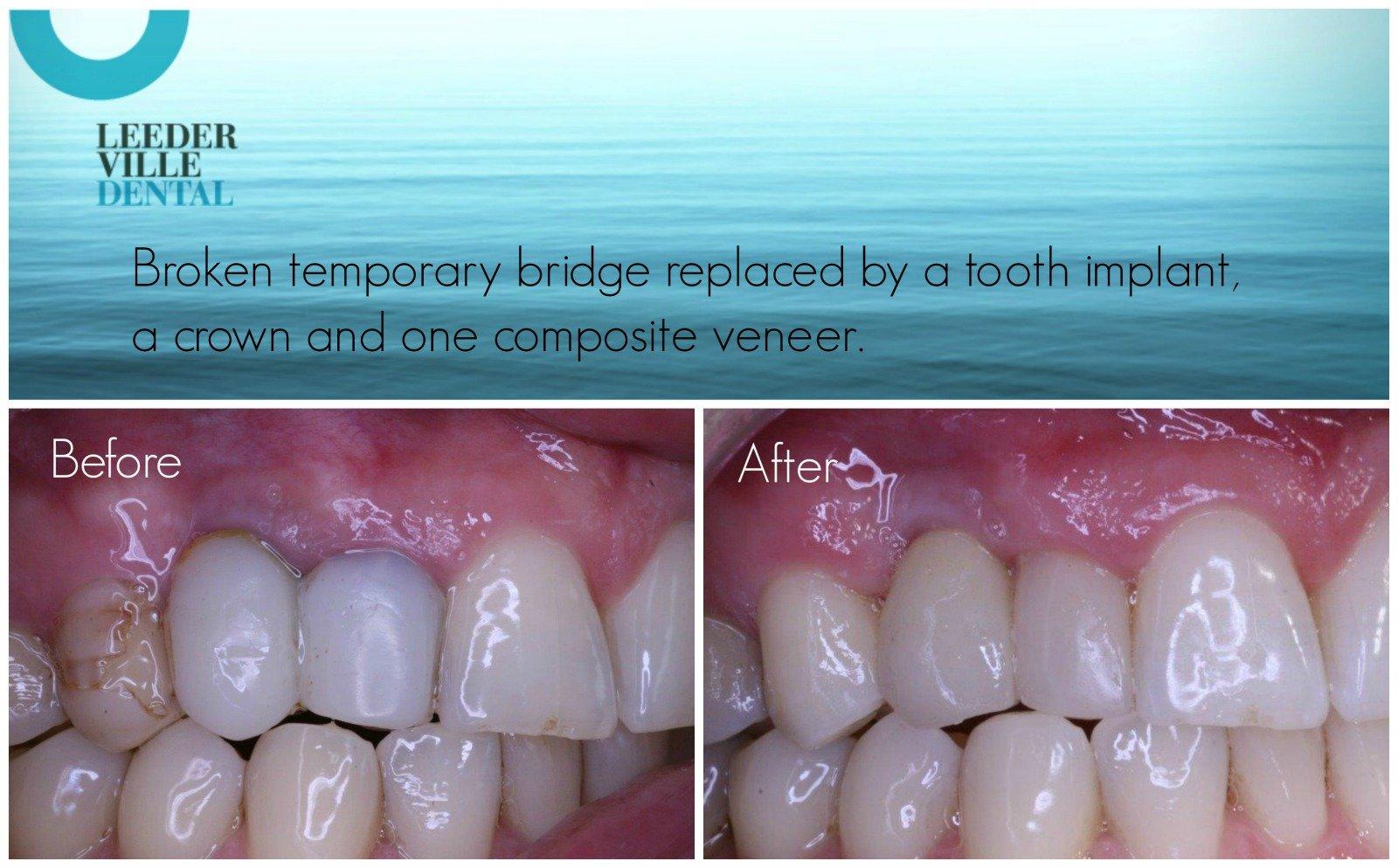 replacement of dental bridge