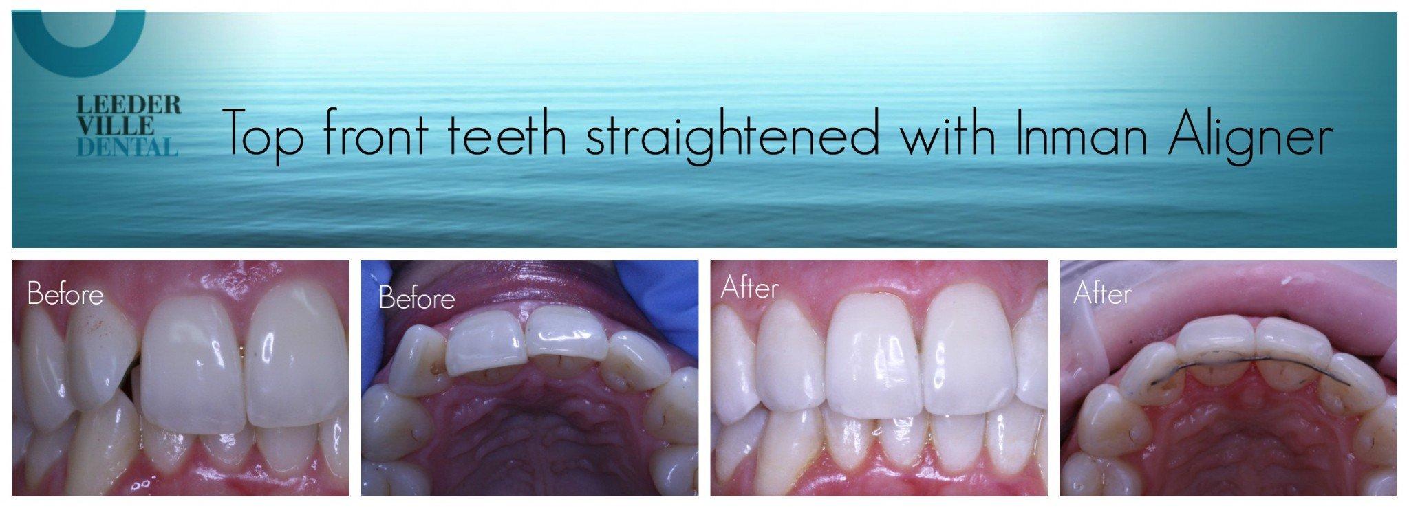 straighten front teeth with inman aligner