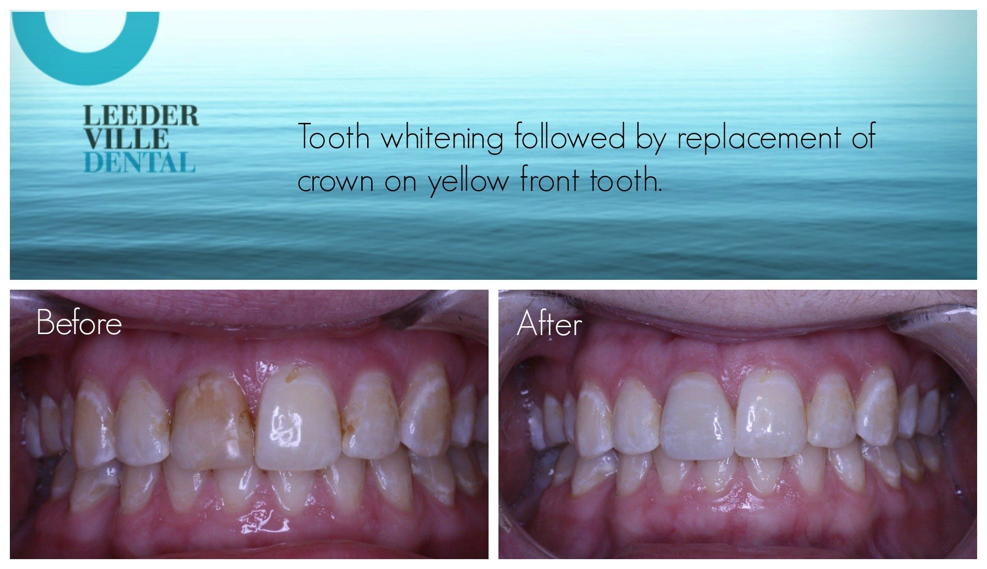 tooth whitening followed by replacement of yellow front tooth crown