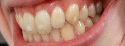 Fluorosis on teeth