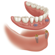 implants connect to denture