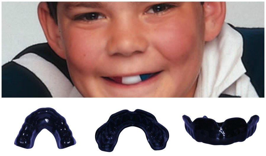choose you mouthguard colour