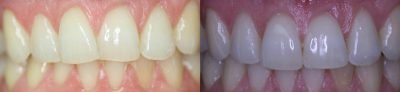 Dentist teeth whitening in Perth