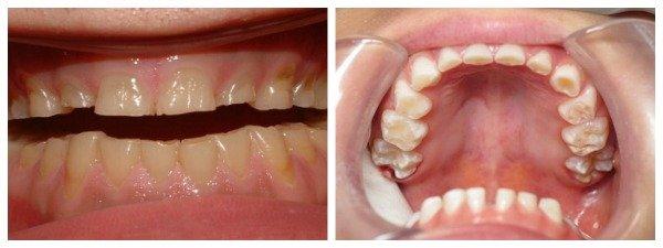 effects of teeth grinding