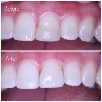 Tooth Repair Leederville Dental Perth S Most