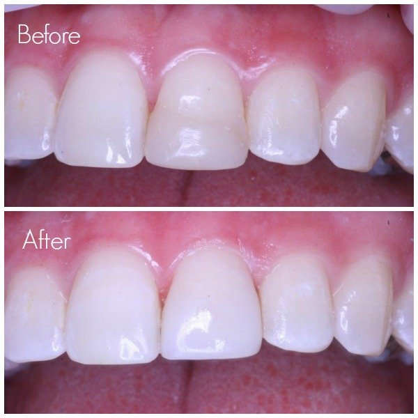 Tooth Filling Replacement