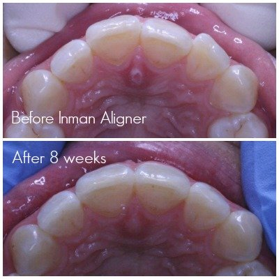 Front teeth straightened in 8 weeks