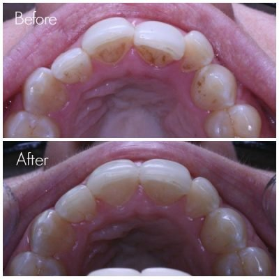 Straighter front teeth