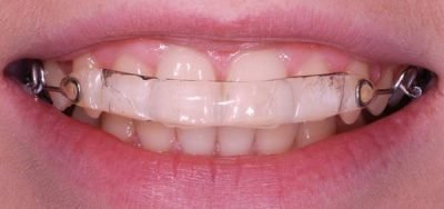 Inman Aligner in your mouth