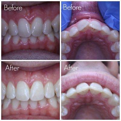 after wearing Inman Aligner on teeth