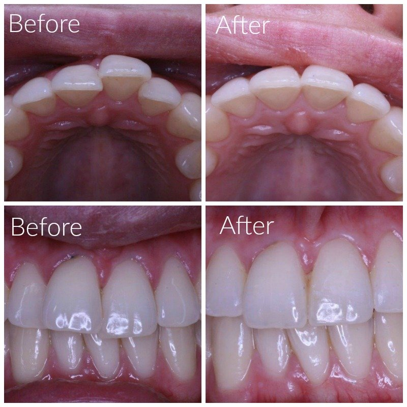 Results After Wearing Inman Aligner Leederville Dental
