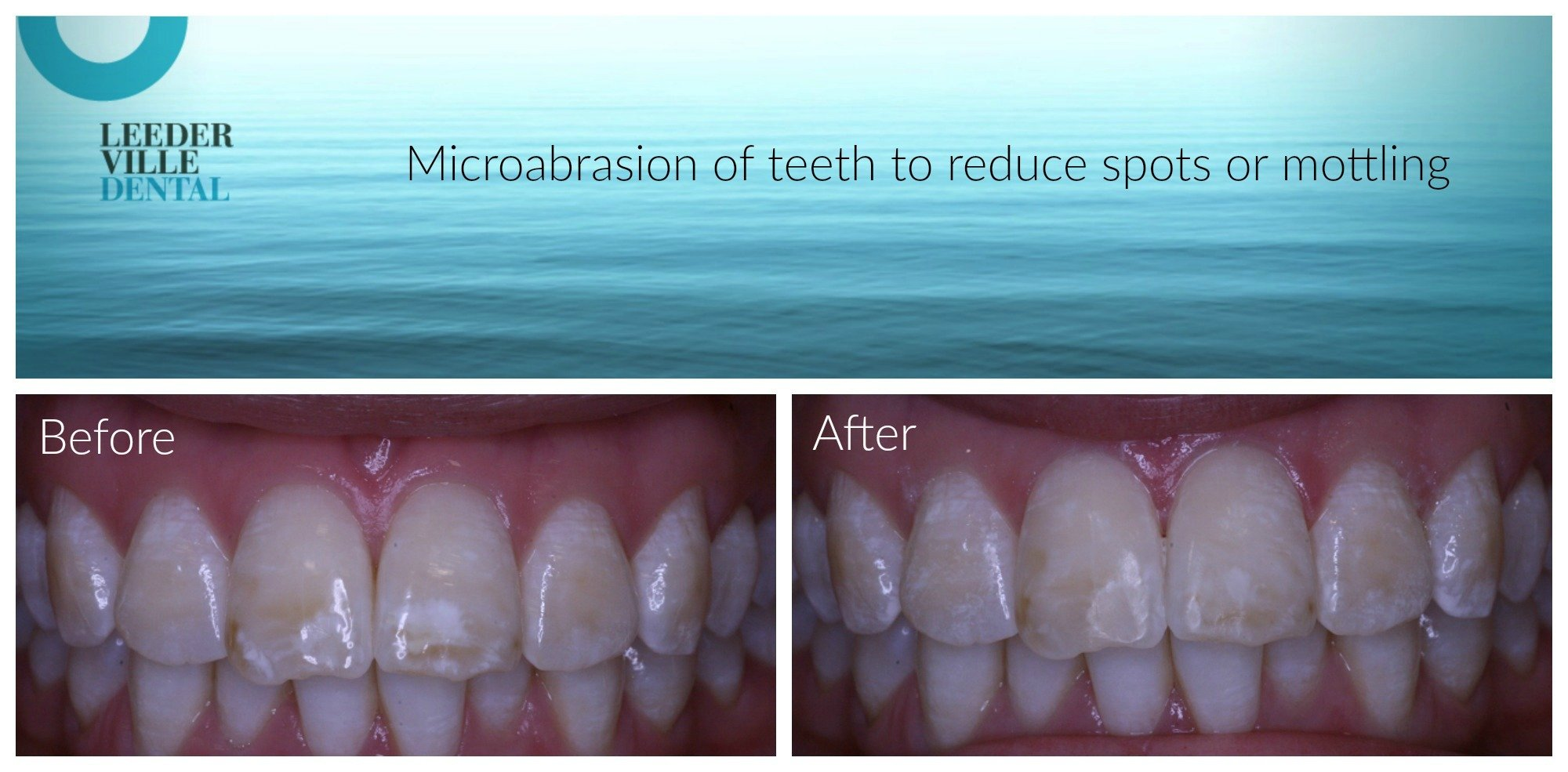 spots can be removed from teeth using microabrasion