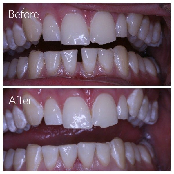 Composite fillings have been used to close gap between lower front teeth
